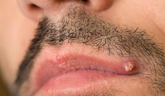 A pimple on lip corner can appear as though it is a large fordyce spot