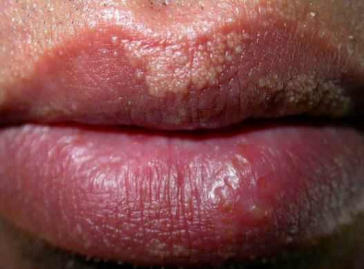 Fordyce spots on lower and upper lips