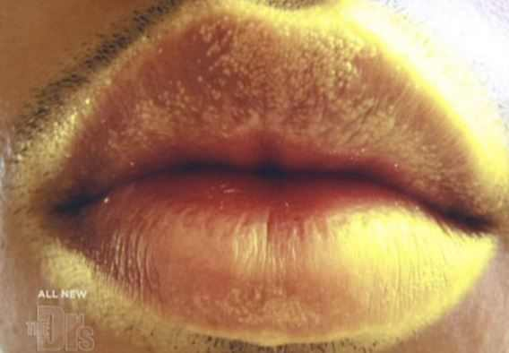 white fordyce granules on lips above and below
