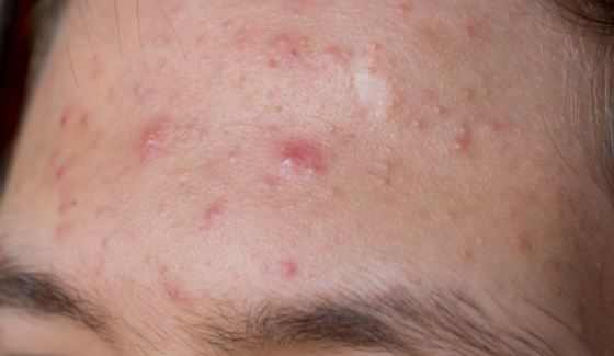 Bumps on forehead from acne pimple breakouts.