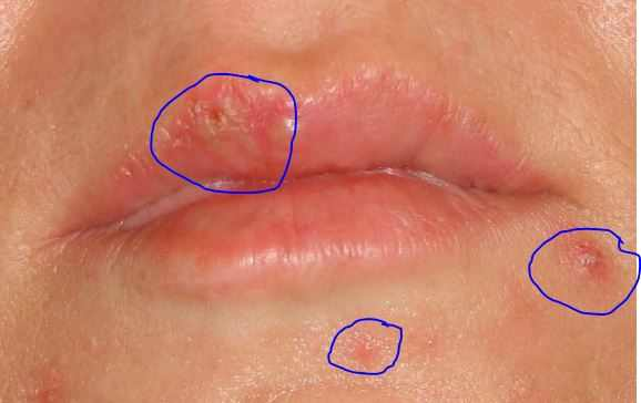 Acne spots on mouth and cold sore at an early stage