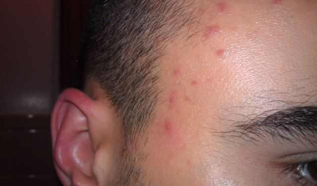 Red spots on the hairline and forehead from allergy