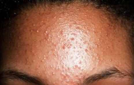 Small bumps on forehead