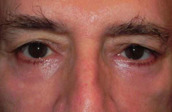 Red Rings and Red Circles around Eyes in elderly
