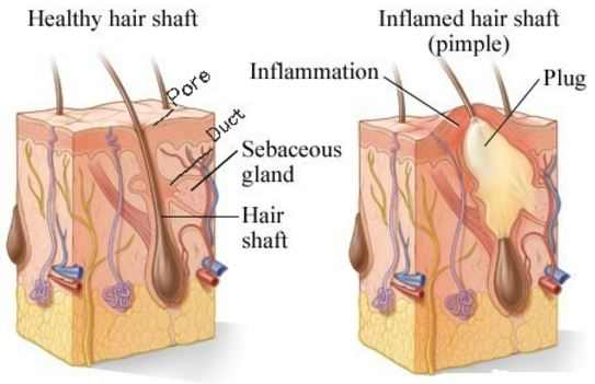 Illustration of a blocked hair follicle due to excessive oil