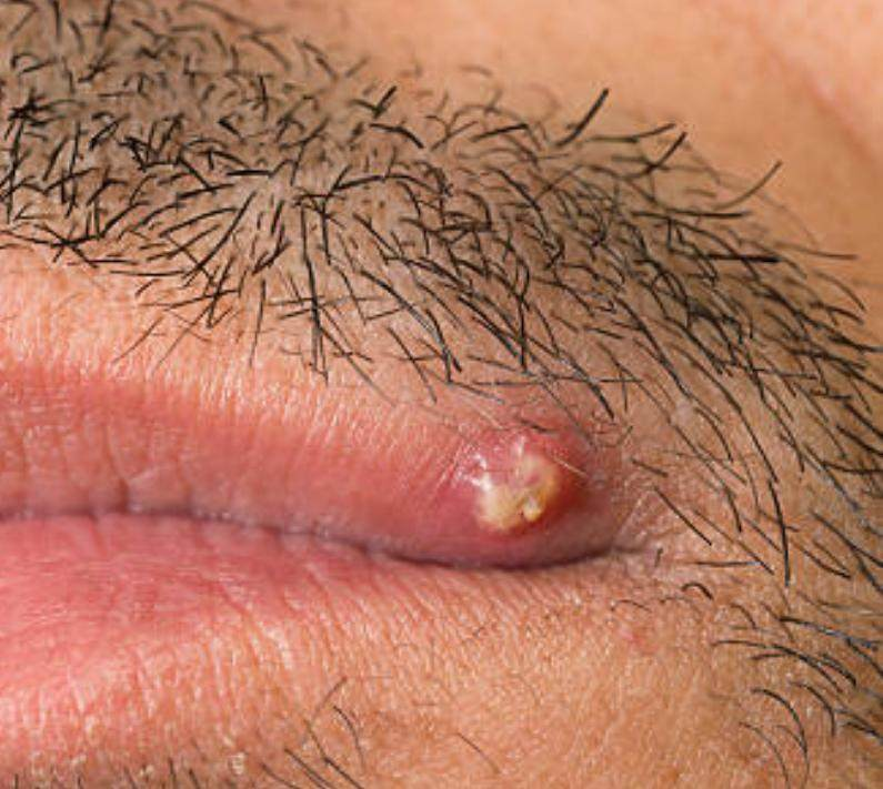 Infected ingrown hair treatment