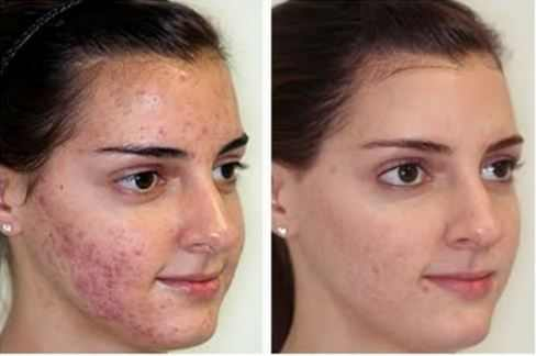 before-and-after-microdermabrasion