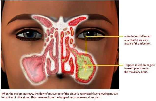Green mucus in nose cause