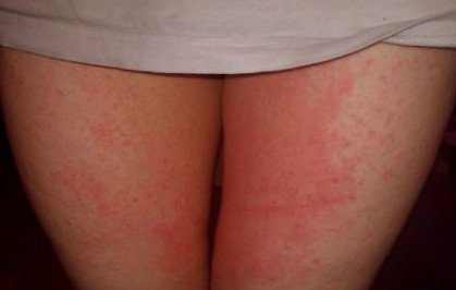 Red itchy rash on inner thighs