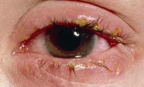 Inflammation of the eyelids (blepharitis) is also a possible cause of abnormal eye discharge that might be causing the crusting