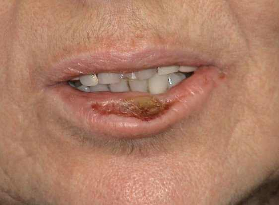How to get rid of crusty lips