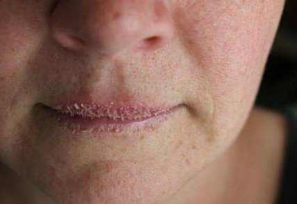 What causes crusty lips